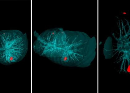 Ученые Политеха создали интеллектуальную систему диагностики опухолей в легких
